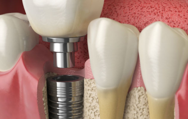 | South Texas Periodontal Associates